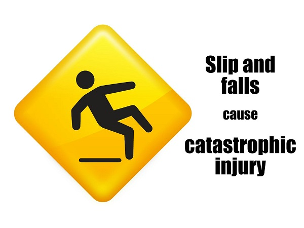 Slip and fall injury in South Bay